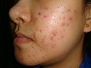 apple cider vinegar to treat acne